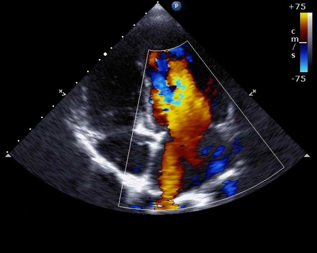 EKG Echocardiogram